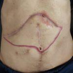 Body art (tumoral)